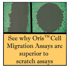http://www.platypustech.com/images/Oris_vs_scratch.jpg